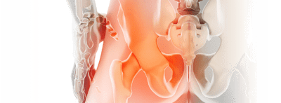 Pyriformis Syndroma ismertetése